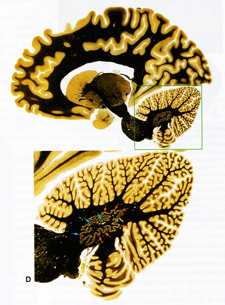 2jb dCerebellum---Cross-sections-in-3-Species.jpg